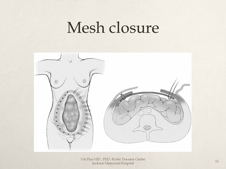 Mesh closure Nir Hus MD., PhD. Ryder Trauma Center Jackson Memorial Hospital 32