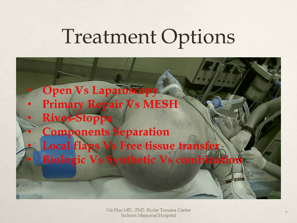 Treatment Options Open Vs Laparoscopy Primary Repair Vs MESH Rives-Stoppa Components Separation Local flaps Vs Free tissue transfer Biologic Vs Synthe