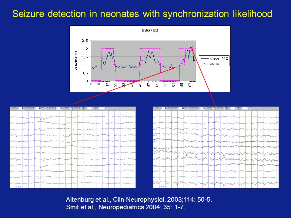 Seizure detection in neonates with synchronization likelihood Altenburg et al., Clin Neurophysiol. 2003;114: 50-5. Smit et al., Neuropediatrics 2004;