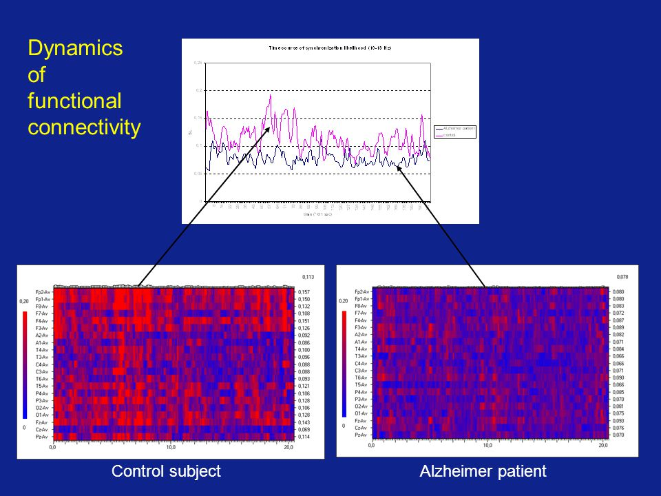 Alzheimer patientControl subject Dynamics of functional connectivity