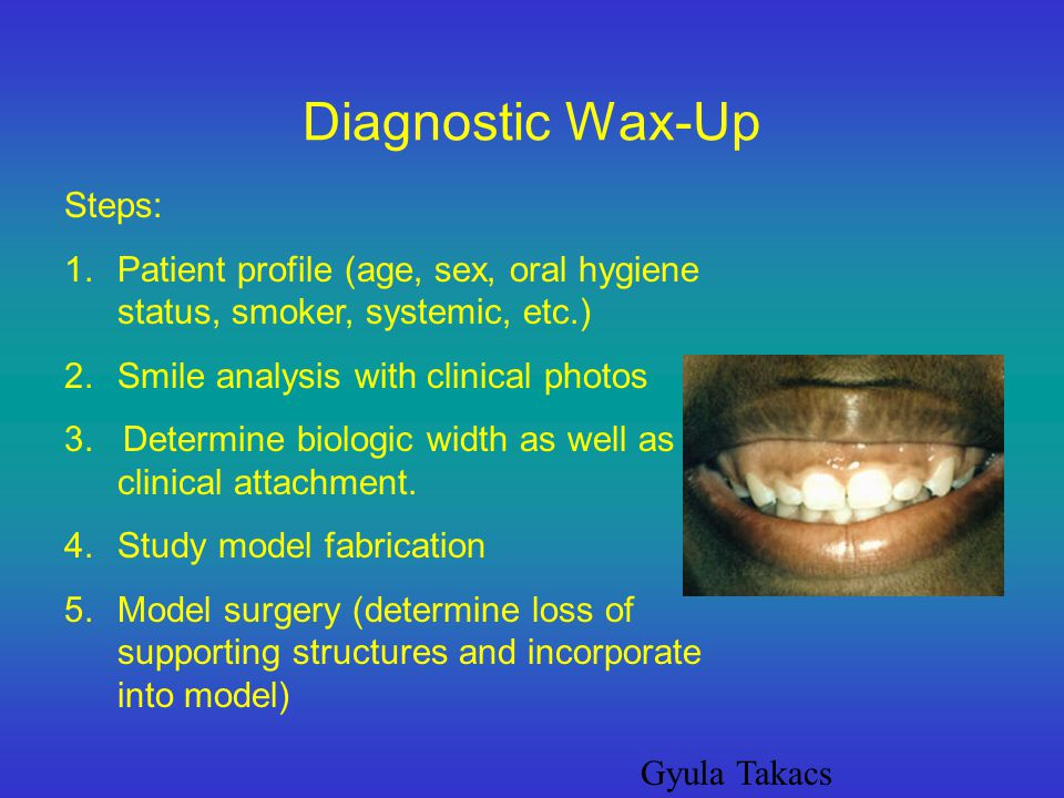 Diagnostic Wax-Up Steps: 1.Patient profile (age, sex, oral hygiene status, smoker, systemic, etc.) 2.Smile analysis with clinical photos 3. Determine