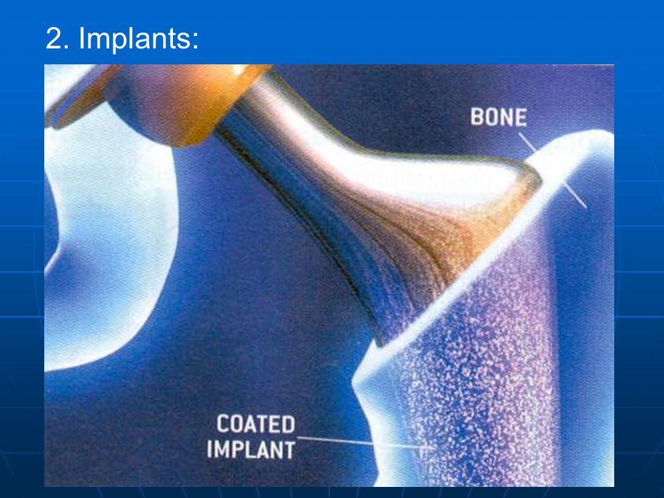 2. Implants: