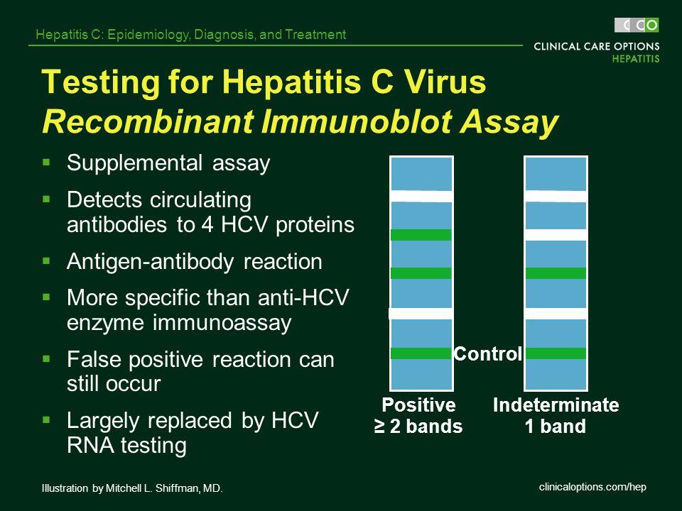 clinicaloptions.com/hep Hepatitis C: Epidemiology, Diagnosis, and Treatment Testing for Hepatitis C Virus Recombinant Immunoblot Assay  Supplemental