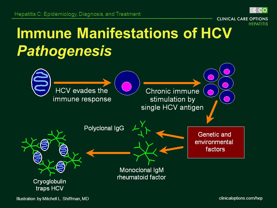 clinicaloptions.com/hep Hepatitis C: Epidemiology, Diagnosis, and Treatment Immune Manifestations of HCV Pathogenesis Illustration by Mitchell L. Shif