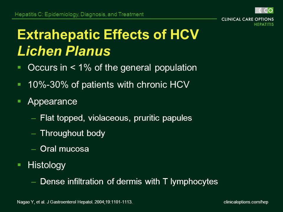 clinicaloptions.com/hep Hepatitis C: Epidemiology, Diagnosis, and Treatment Nagao Y, et al. J Gastroenterol Hepatol. 2004;19:1101-1113. Extrahepatic E