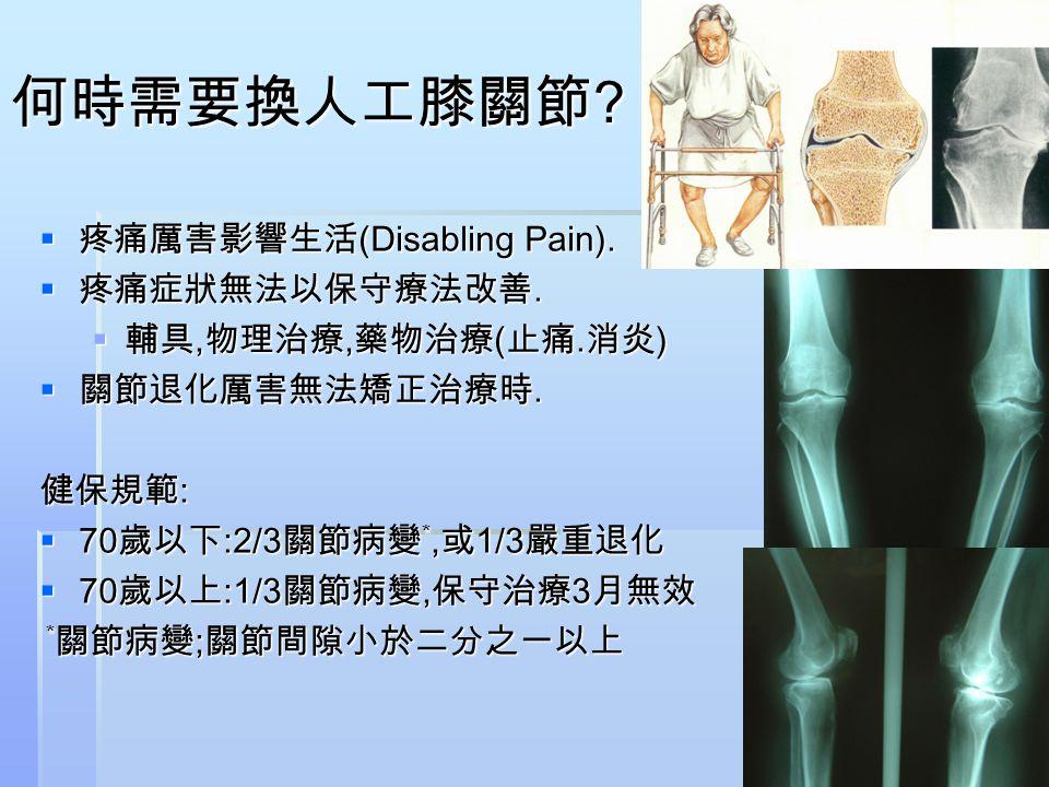 何時需要換人工膝關節 ?  疼痛厲害影響生活 (Disabling Pain).  疼痛症狀無法以保守療法改善.  輔具, 物理治療, 藥物治療 ( 止痛. 消炎 )  關節退化厲害無法矯正治療時. 健保規範 :  70 歲以下 :2/3 關節病變 *, 或 1/3 嚴重退化  70 歲