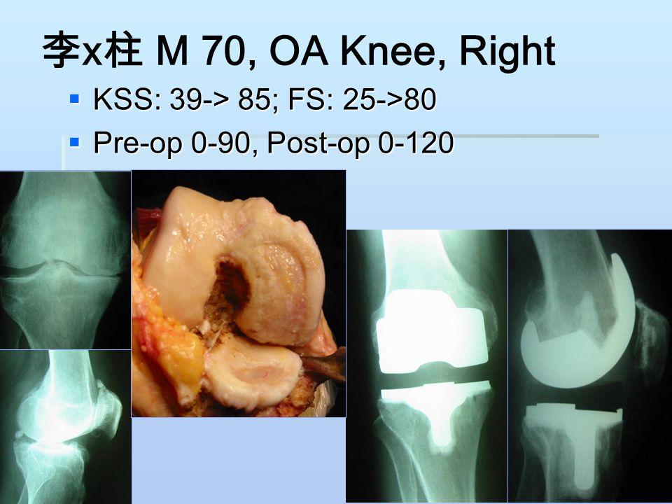 李 x 柱 M 70, OA Knee, Right  KSS: 39-> 85; FS: 25->80  Pre-op 0-90, Post-op 0-120