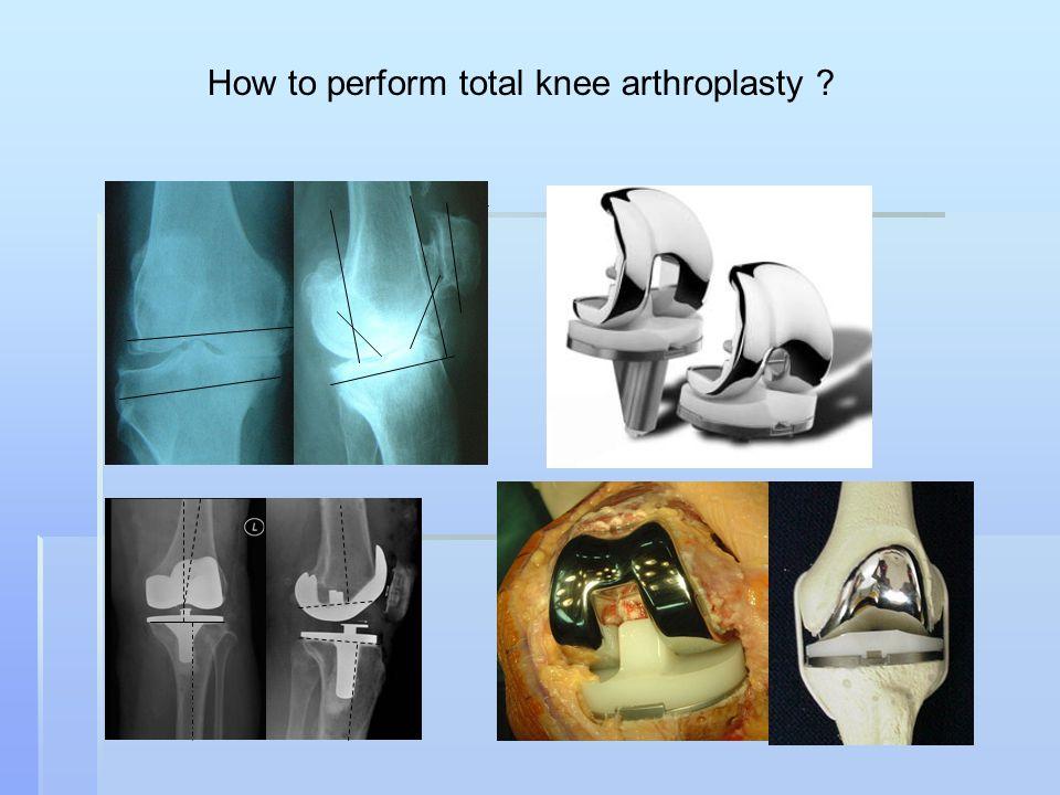 How to perform total knee arthroplasty ?