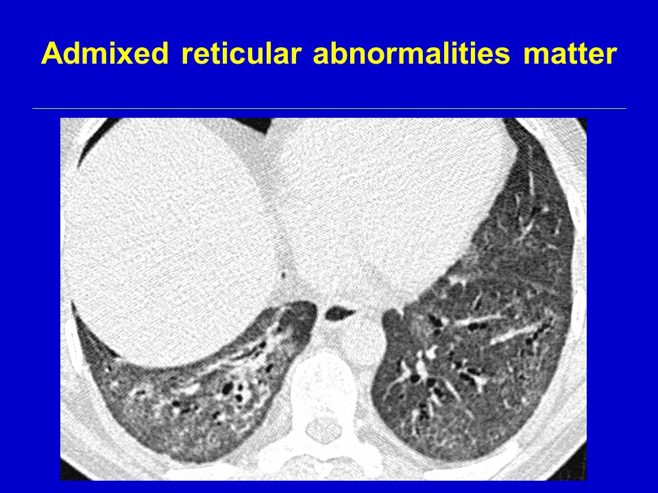 Admixed reticular abnormalities matter