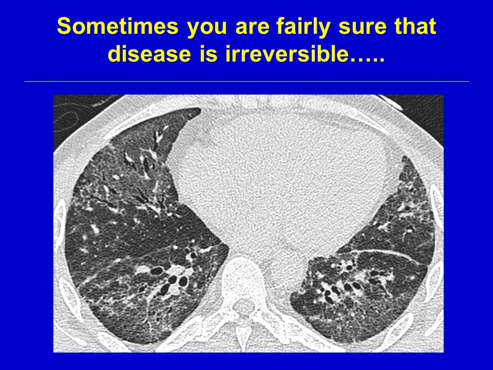 Sometimes you are fairly sure that disease is irreversible…..