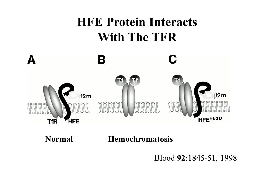 Blood 92:1845-51, 1998 HFE Protein Interacts With The TFR NormalHemochromatosis