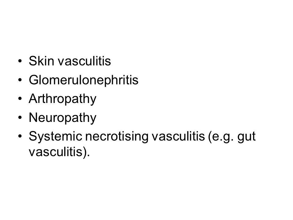 Skin vasculitis Glomerulonephritis Arthropathy Neuropathy Systemic necrotising vasculitis (e.g.