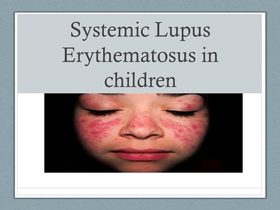 Systemic Lupus Erythematosus in children