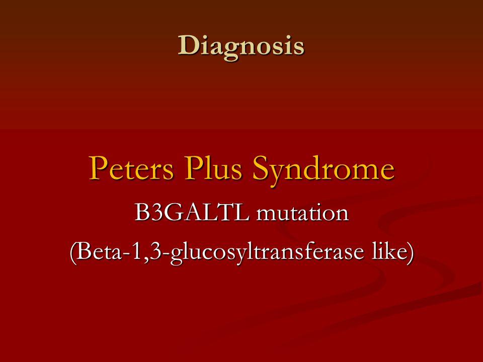 Diagnosis Peters Plus Syndrome B3GALTL mutation (Beta-1,3-glucosyltransferase like)