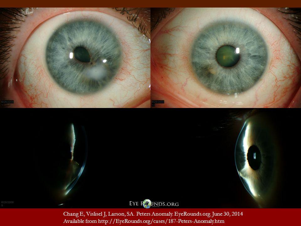 Chang E, Vislisel J, Larson, SA. Peters Anomaly. EyeRounds.org.