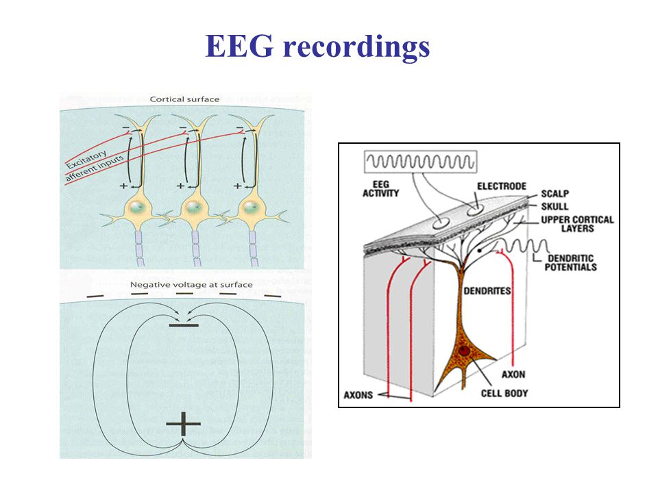 EEG recordings