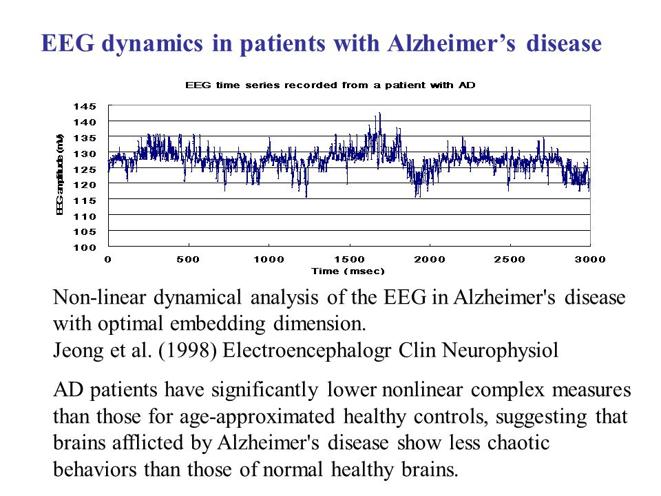 Non-linear dynamical analysis of the EEG in Alzheimer s disease with optimal embedding dimension.