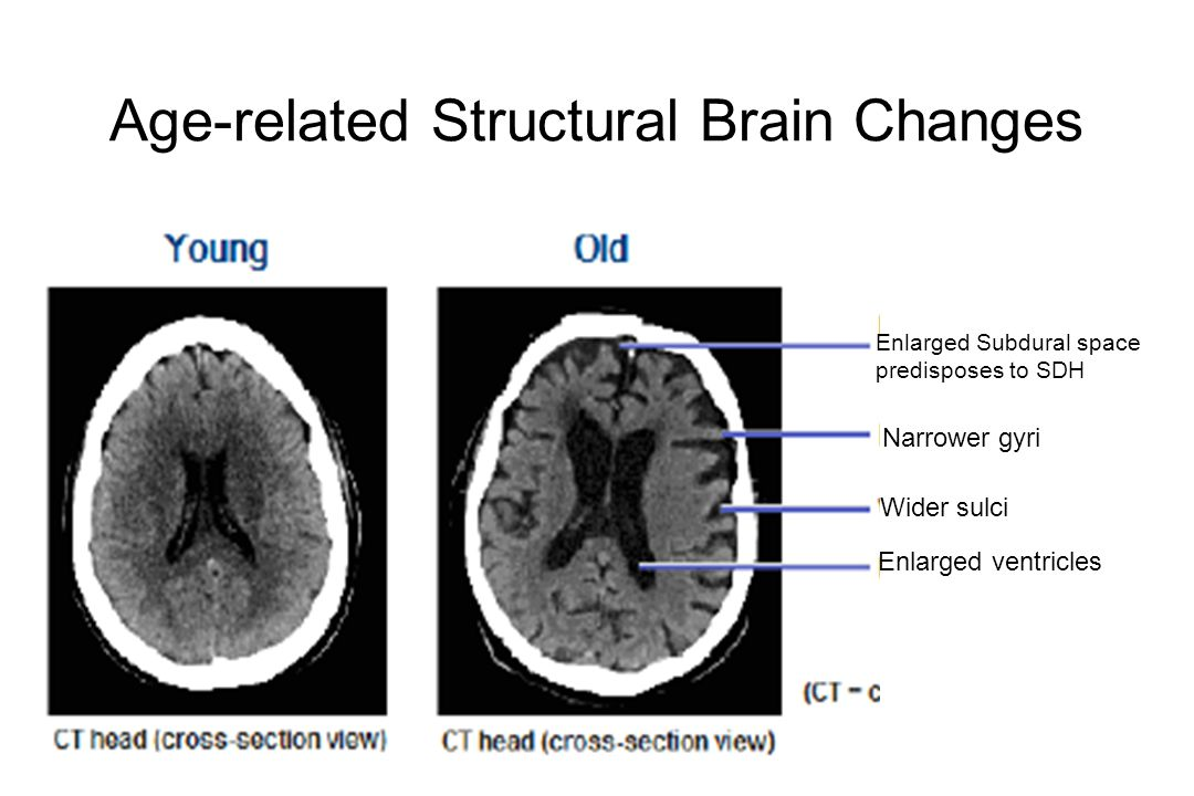 Age-related Structural Brain Changes Enlarged Subdural space predisposes to SDH Narrower gyri Wider sulci Enlarged ventricles