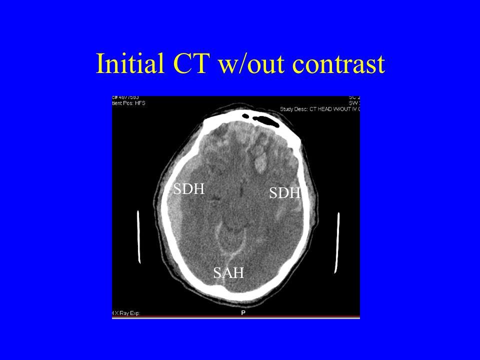 Diagnosis Bilateral Acute SDH's SAH Frontal Contusion vs IPH