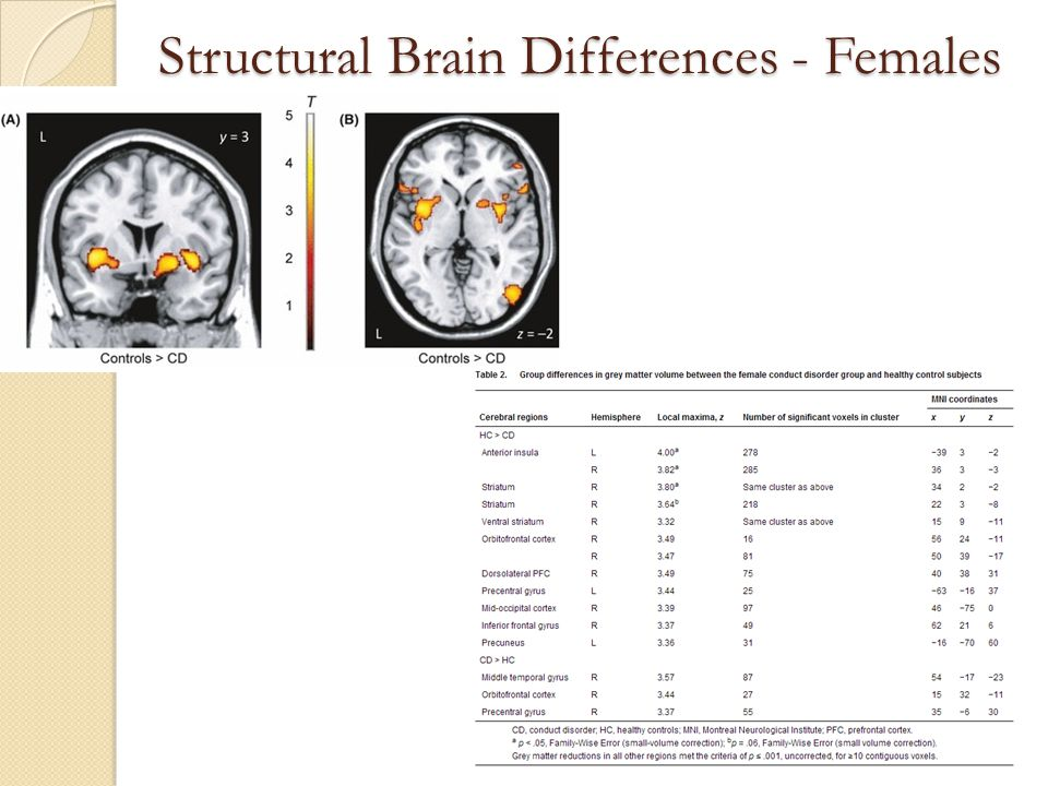 Structural Brain Differences - Females