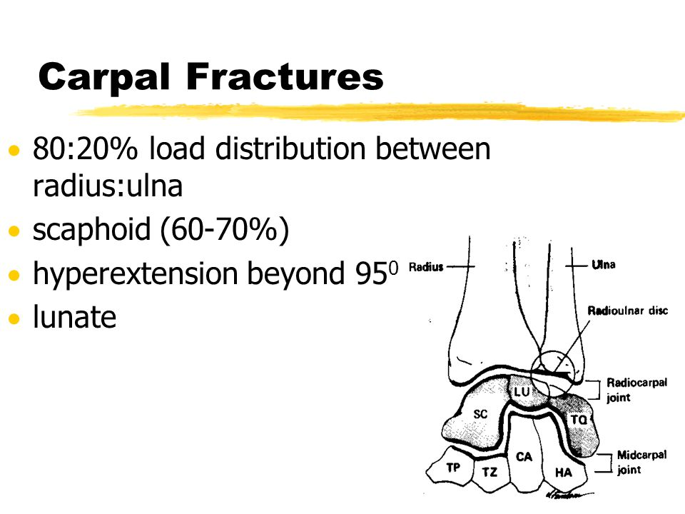 Carpal Fractures  80:20% load distribution between radius:ulna  scaphoid (60-70%)  hyperextension beyond 95 0  lunate