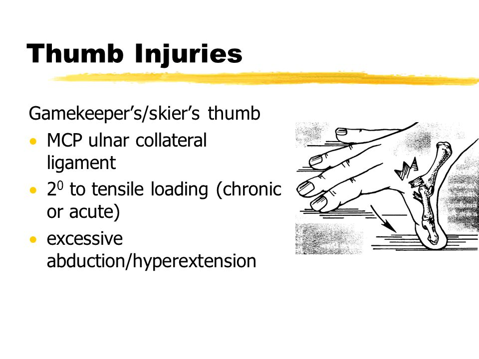 Thumb Injuries Gamekeeper's/skier's thumb  MCP ulnar collateral ligament  2 0 to tensile loading (chronic or acute)  excessive abduction/hyperexten
