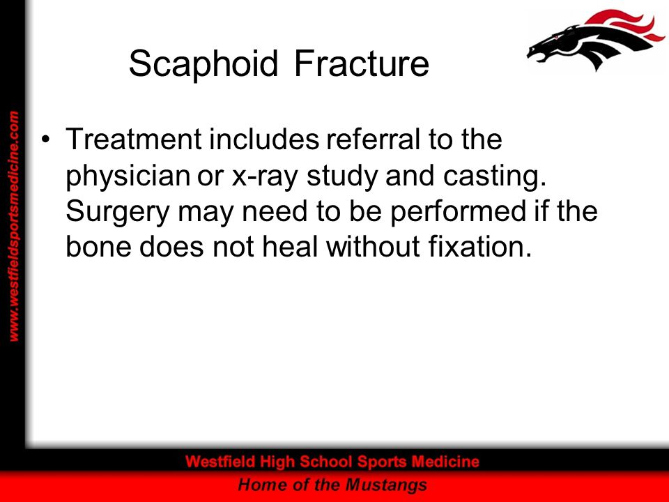 Scaphoid Fracture Treatment includes referral to the physician or x-ray study and casting. Surgery may need to be performed if the bone does not heal