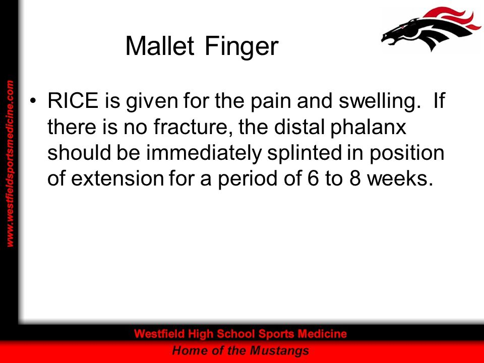 Mallet Finger RICE is given for the pain and swelling. If there is no fracture, the distal phalanx should be immediately splinted in position of exten