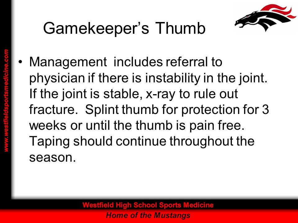 Gamekeeper's Thumb Management includes referral to physician if there is instability in the joint. If the joint is stable, x-ray to rule out fracture.