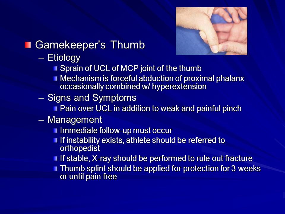 Gamekeeper's Thumb –Etiology Sprain of UCL of MCP joint of the thumb Mechanism is forceful abduction of proximal phalanx occasionally combined w/ hype