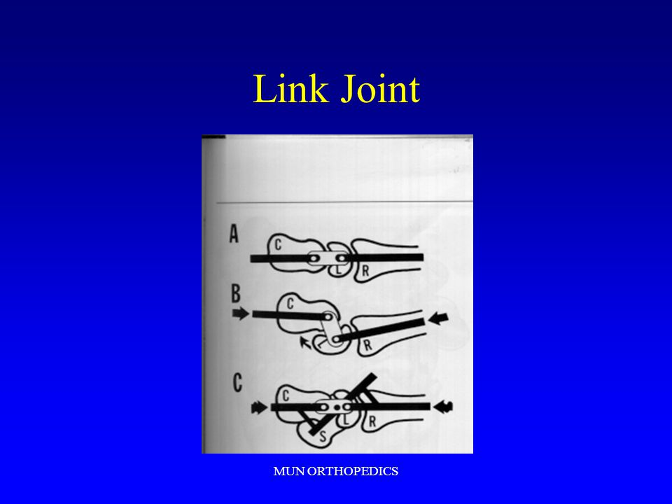 MUN ORTHOPEDICS Link Joint