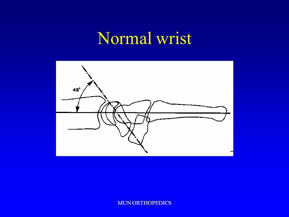 MUN ORTHOPEDICS Normal wrist