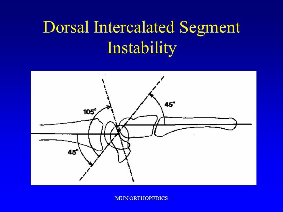 MUN ORTHOPEDICS Dorsal Intercalated Segment Instability