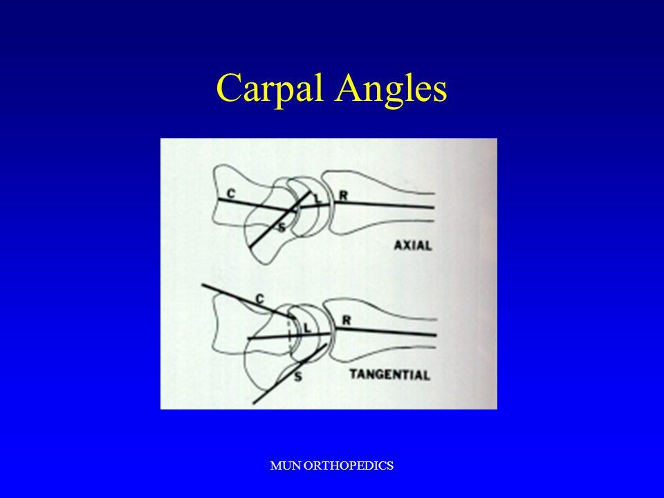 MUN ORTHOPEDICS Carpal Angles