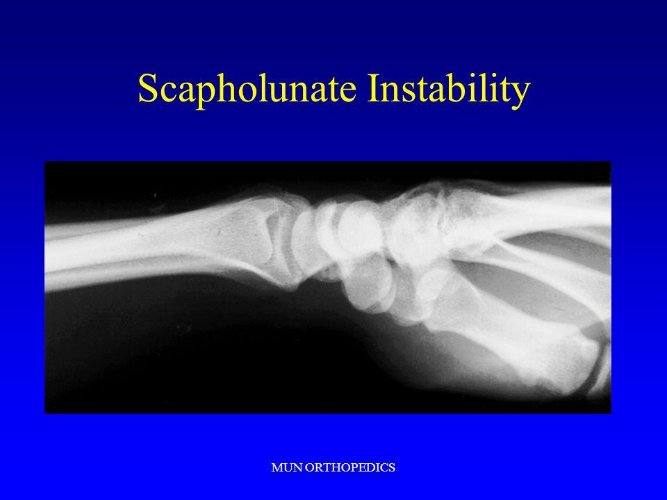 MUN ORTHOPEDICS Scapholunate Instability