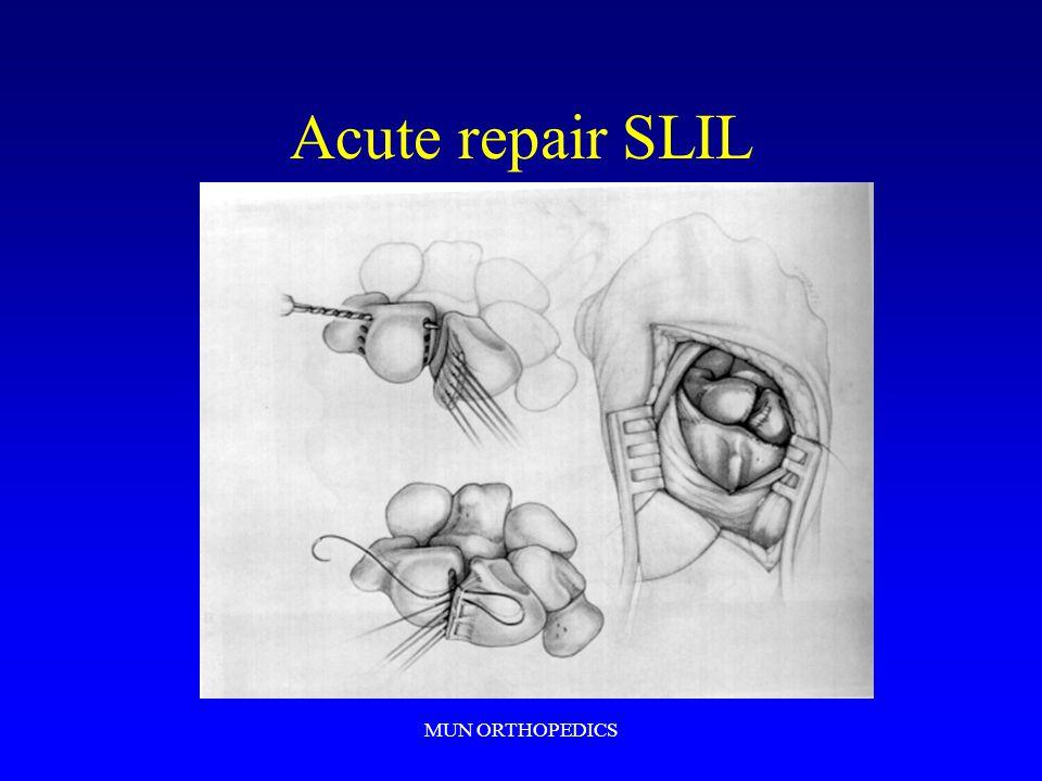 MUN ORTHOPEDICS Acute repair SLIL