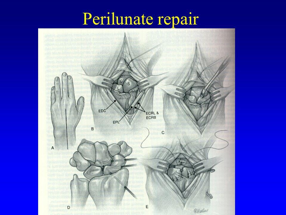 MUN ORTHOPEDICS Perilunate repair