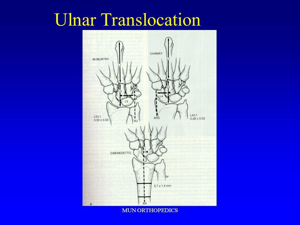 MUN ORTHOPEDICS Ulnar Translocation