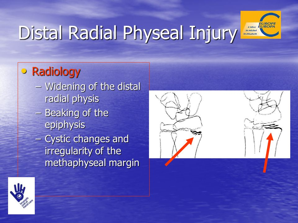 Radiology Radiology –Widening of the distal radial physis –Beaking of the epiphysis –Cystic changes and irregularity of the methaphyseal margin