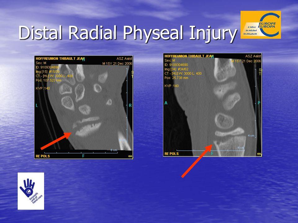 Distal Radial Physeal Injury