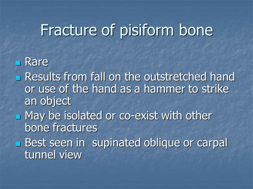 Fracture of pisiform bone Rare Rare Results from fall on the outstretched hand or use of the hand as a hammer to strike an object Results from fall on