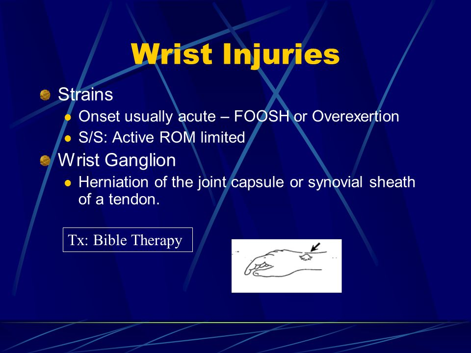 Wrist Injuries Strains Onset usually acute – FOOSH or Overexertion S/S: Active ROM limited Wrist Ganglion Herniation of the joint capsule or synovial sheath of a tendon.