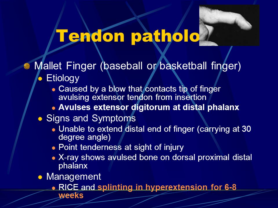 Tendon pathology Mallet Finger (baseball or basketball finger) Etiology Caused by a blow that contacts tip of finger avulsing extensor tendon from insertion Avulses extensor digitorum at distal phalanx Signs and Symptoms Unable to extend distal end of finger (carrying at 30 degree angle) Point tenderness at sight of injury X-ray shows avulsed bone on dorsal proximal distal phalanx Management RICE and splinting in hyperextension for 6-8 weeks