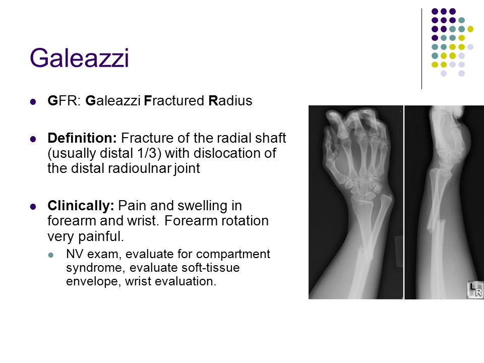 Galeazzi GFR: Galeazzi Fractured Radius Definition: Fracture of the radial shaft (usually distal 1/3) with dislocation of the distal radioulnar joint