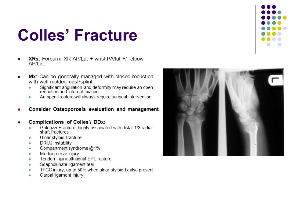 Colles' Fracture XRs: Forearm XR AP/Lat + wrist PA/lat +/- elbow AP/Lat. Mx: Can be generally managed with closed reduction with well molded cast/spli