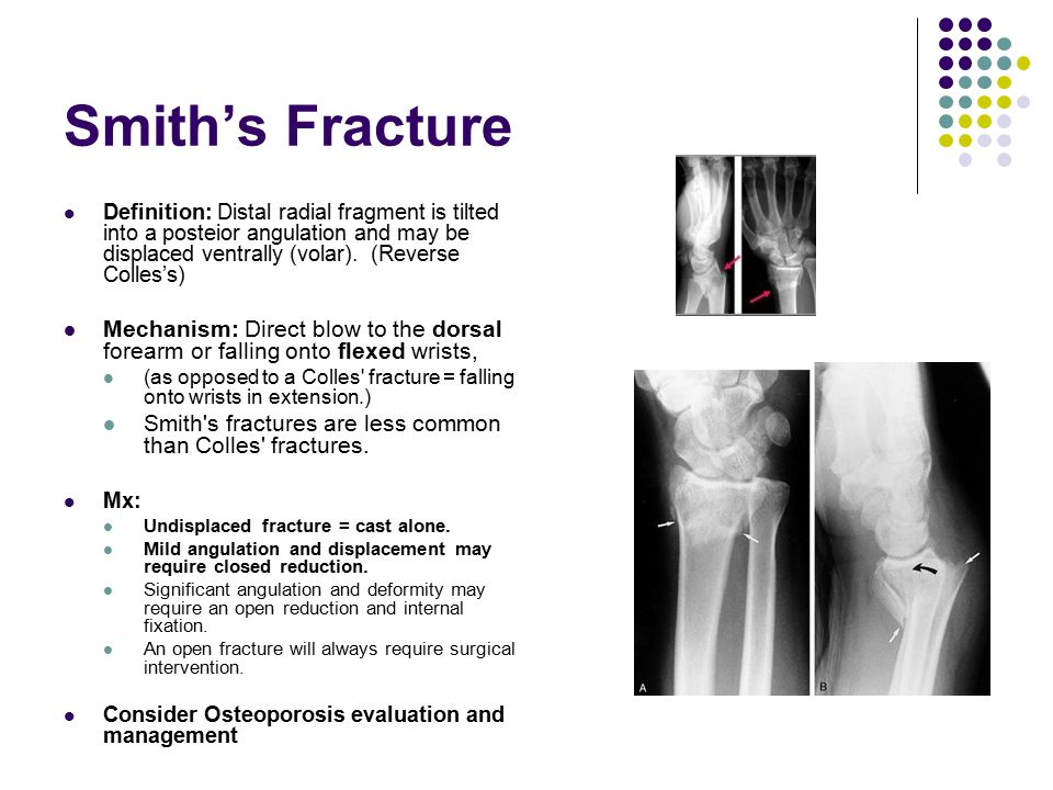 Smith's Fracture Definition: Distal radial fragment is tilted into a posteior angulation and may be displaced ventrally (volar). (Reverse Colles's) Me