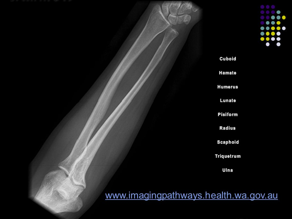 Isolated Ulnar/Radius Most fractures of the ulnar/radius shaft are caused by direct blows and result in minimal soft-tissue injury.
