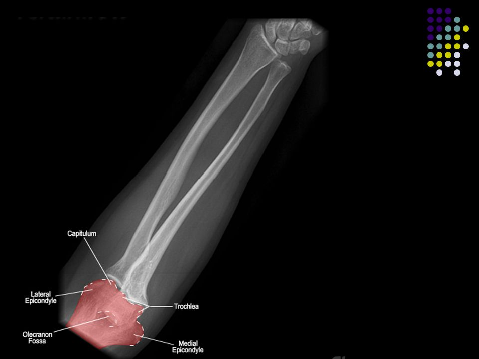Isolated Ulnar/Radius Ulnar Shaft Fracture Associated Injuries / Differential Diagnosis Monteggia fracture-dislocation.