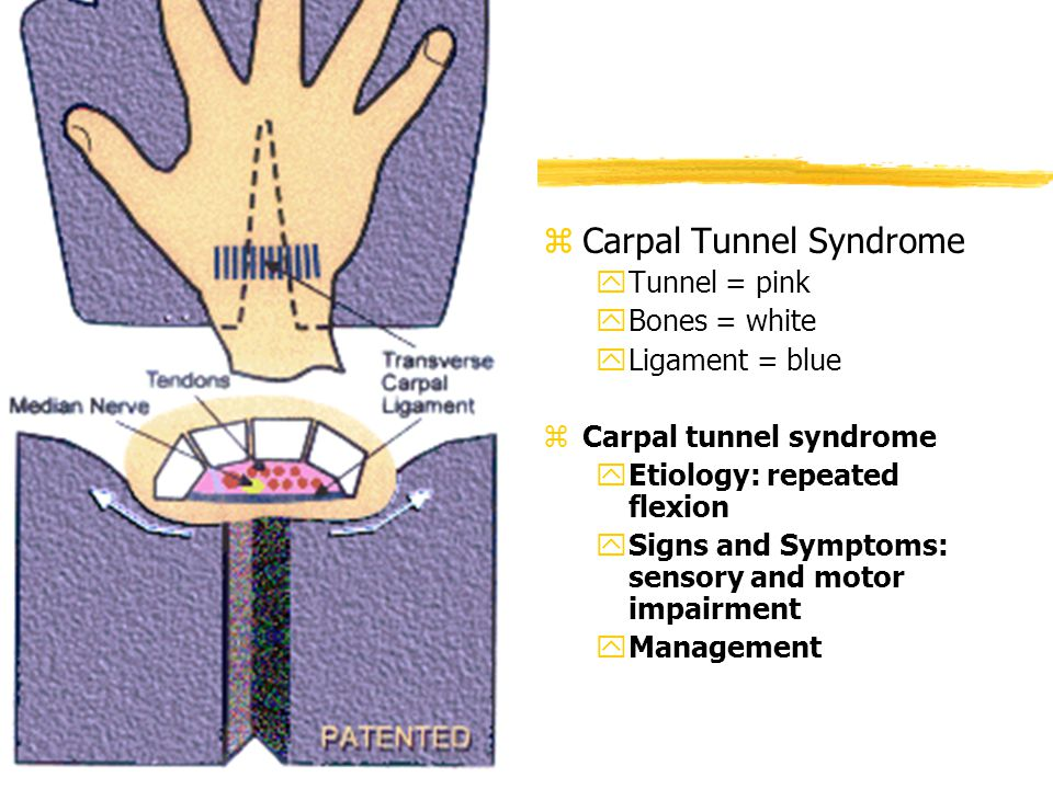 z Carpal Tunnel Syndrome yTunnel = pink yBones = white yLigament = blue z Carpal tunnel syndrome yEtiology: repeated flexion ySigns and Symptoms: sensory and motor impairment yManagement