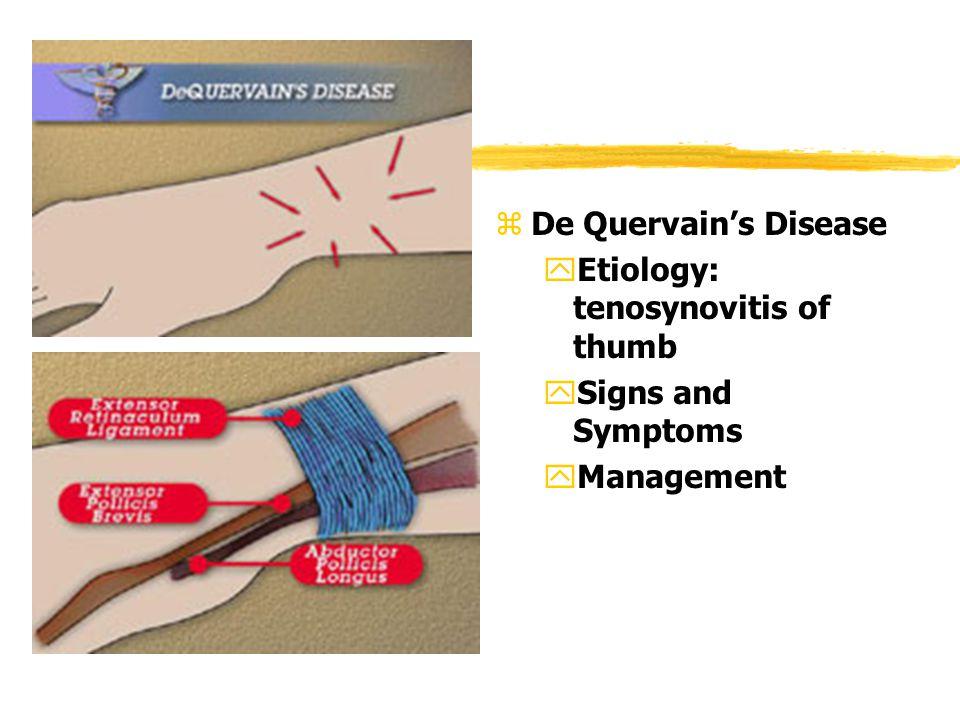 z De Quervain's Disease yEtiology: tenosynovitis of thumb ySigns and Symptoms yManagement